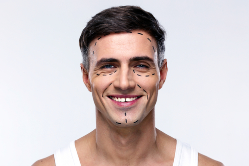 Smiling man marked with lines for plastic surgery