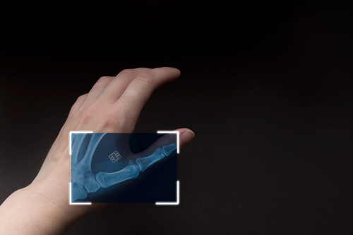 arm with digital implants and microchips under the skin